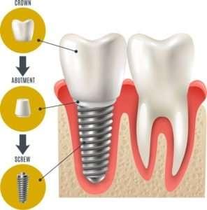 dental implant regina
