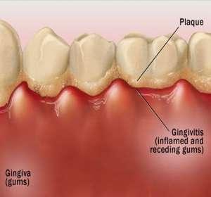 Affordable dental exams in Regina and Saskatoon
