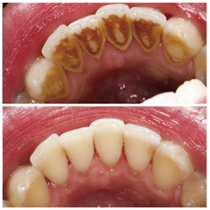 Services Archives - simpli dental Regina
