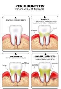 Affordable dental in Regina and Saskatoon
